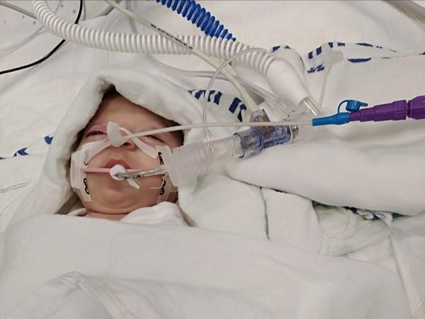 asmeen intubated