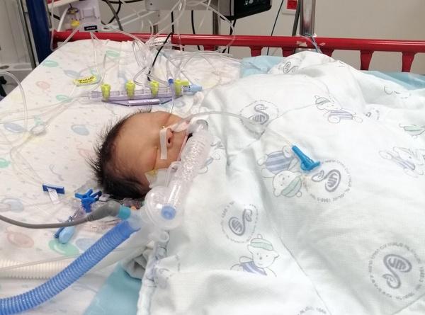 yazen intubated